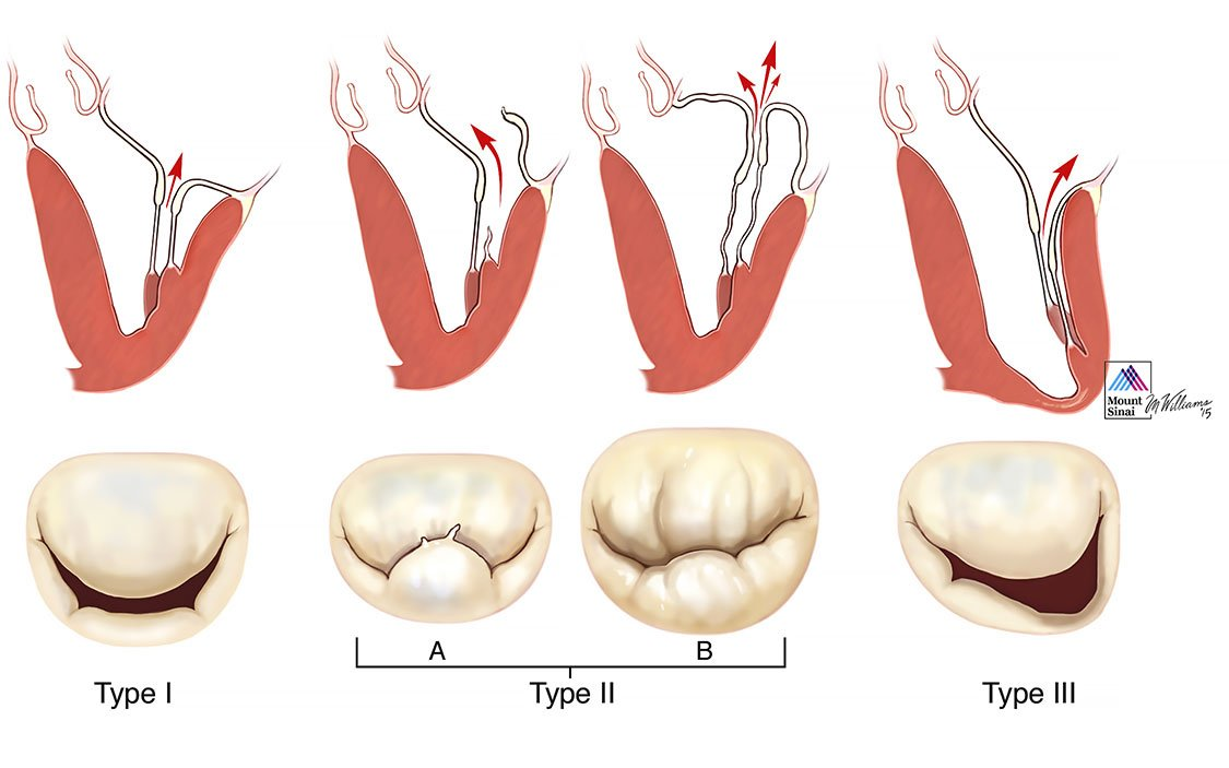 Types of Mitral Valve Disease